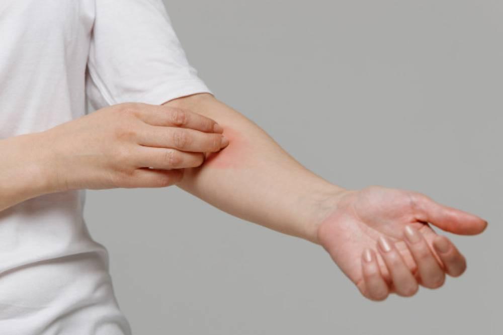Аллергия на сульфиты и сульфаниламиды